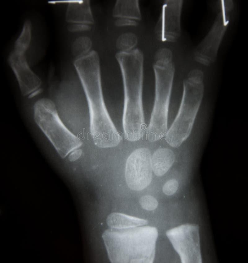 Рентгеновский снимок фильма оба рука AP: покажите нормальное человеческое ` s стоковые фотографии rf