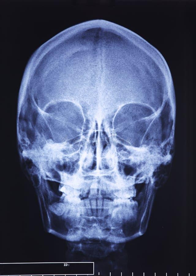 рентгеновский снимок черепа стоковое фото