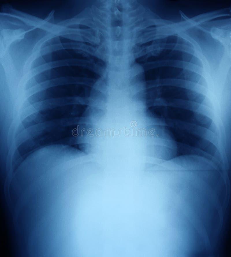 Рентгеновский снимок человеческого торакса стоковая фотография rf