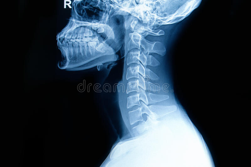 Рентгеновский снимок человеческого цервикального позвоночника стоковая фотография