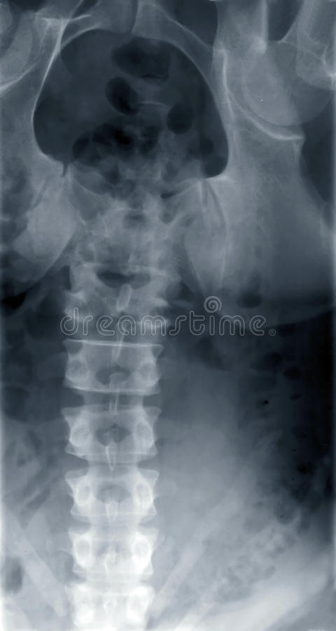 Рентгеновский снимок стоковая фотография rf