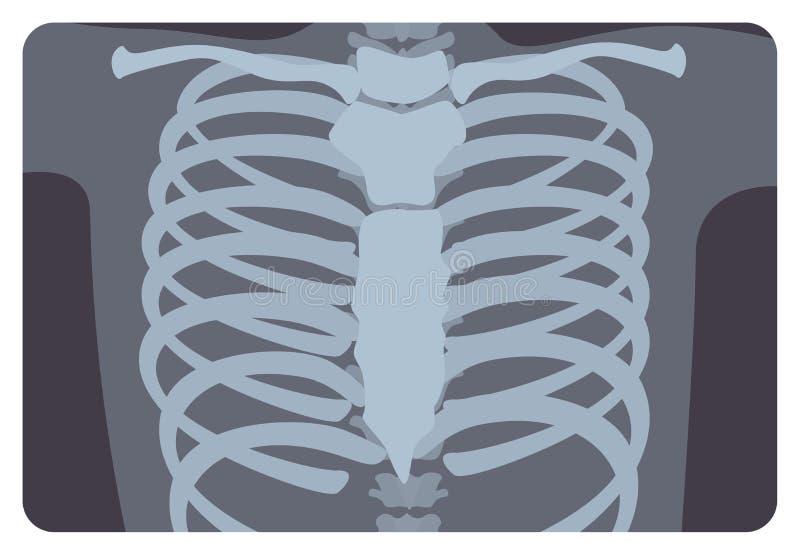 Рентгенограмма, изображение X-радиации или изображение рентгеновского снимка нервюры или торакальной клетки сформировали позвоноч иллюстрация вектора