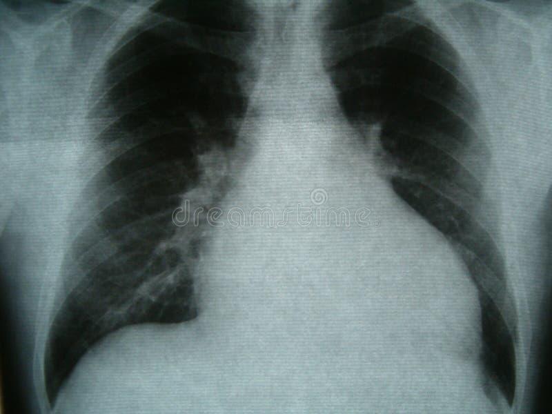 Рентгенограмма, комод, остановка сердца стоковое изображение rf