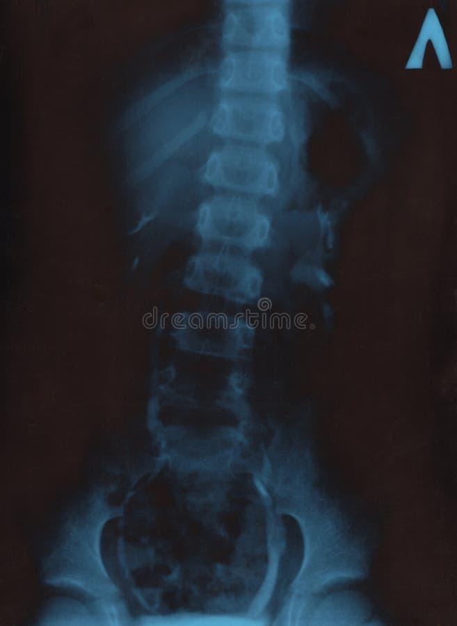 рентгенограмма стоковая фотография