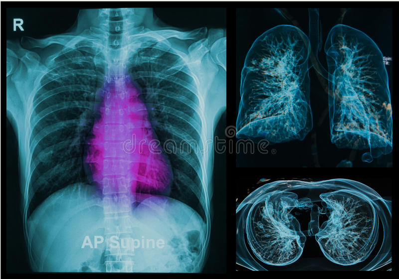 Рентгены легких под изображением 3d стоковое фото rf
