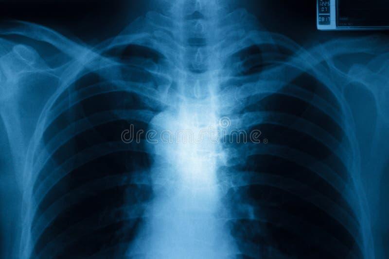 Рентген грудной клетки стоковое фото