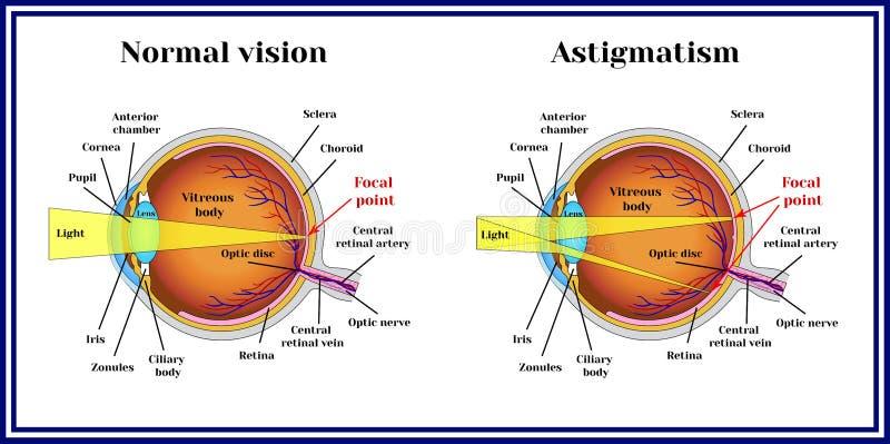 Рефрактивный зрачок ошибок астигматизм Медицина иллюстрация вектора