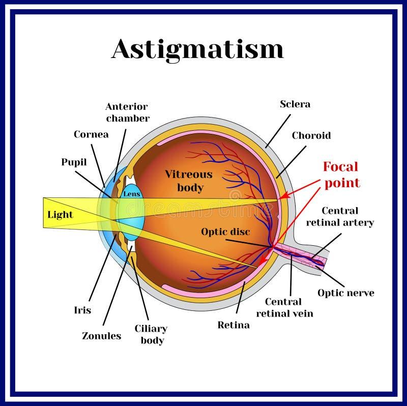 Рефрактивный зрачок ошибок астигматизм Медицина бесплатная иллюстрация