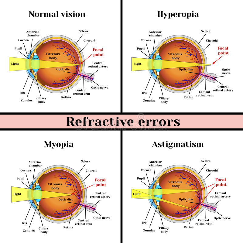 Рефрактивный зрачок ошибок: дальнозоркость, близорукость, астигматизм иллюстрация вектора