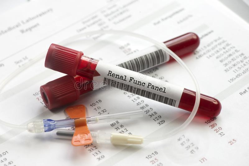 Ринальные пробирки для анализа крови стоковое изображение