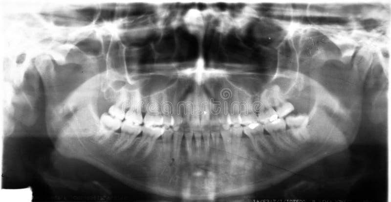 Рот панорамы луча челюсти x зубоврачебный полный стоковое фото rf