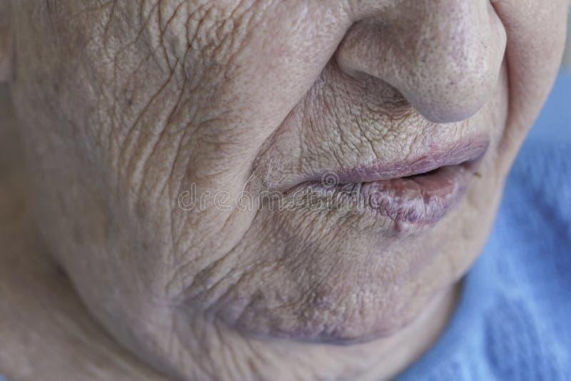 Рот старшей персоны которая имеет лицевой паралич стоковая фотография rf