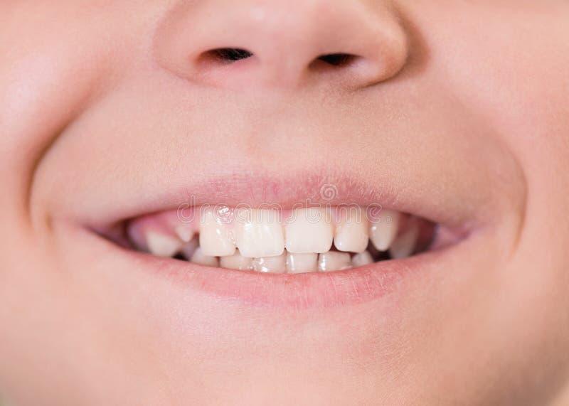 Рот с белыми зубами стоковая фотография rf