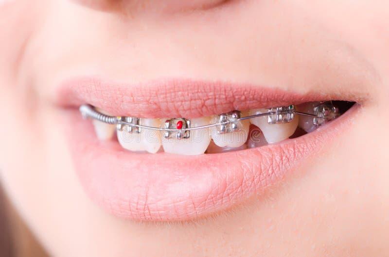 Рот с расчалками кронштейнов стоковая фотография rf
