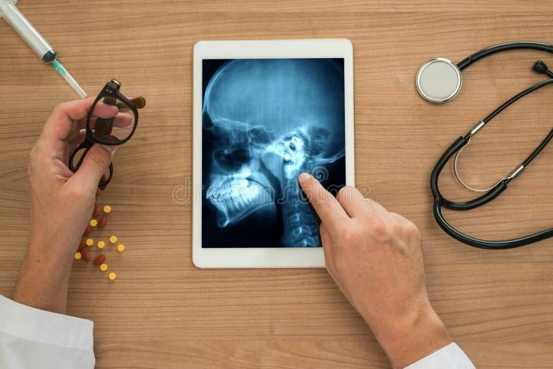 Рука доктора показывая рентгеновский снимок ушей и черепа на цифровой таблетке стоковое изображение