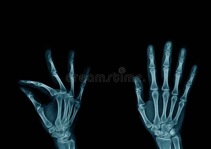 рука и палец изображения рентгеновского снимка стоковое изображение rf