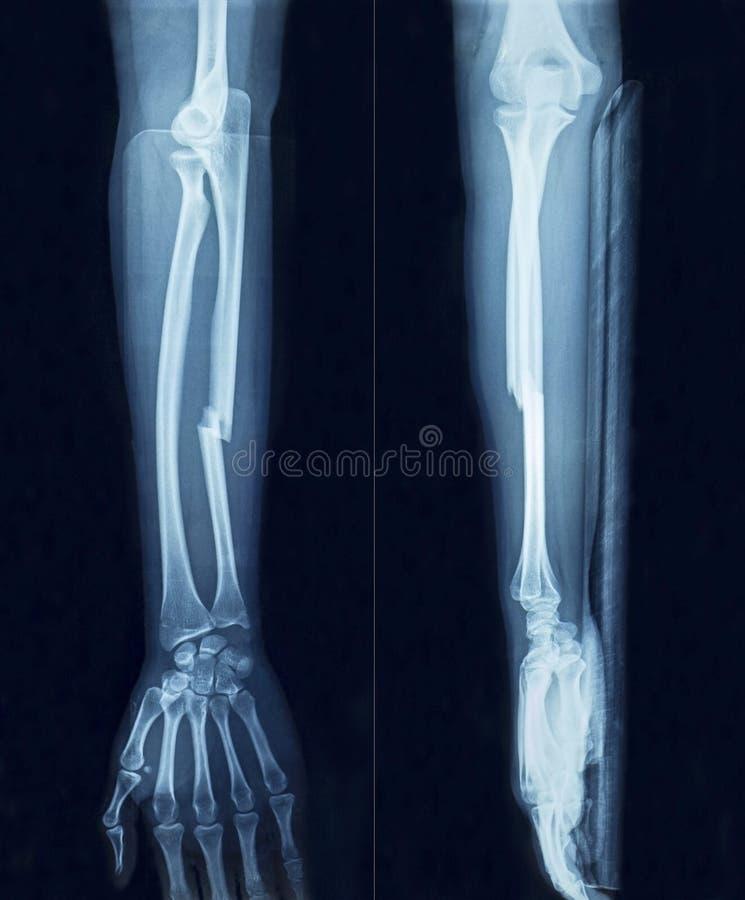 Рука рентгеновского снимка фильма стоковые фотографии rf