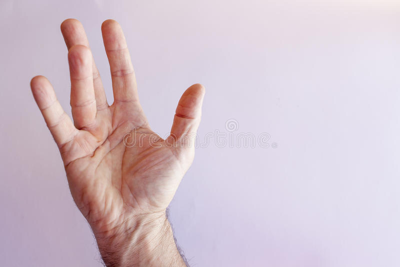 Рука человека с контрактурой Dupuytren стоковая фотография rf