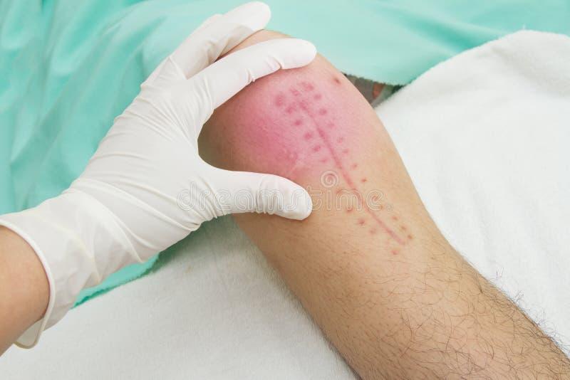 Руки обработки физиотерапевта соединение колена стоковое изображение rf
