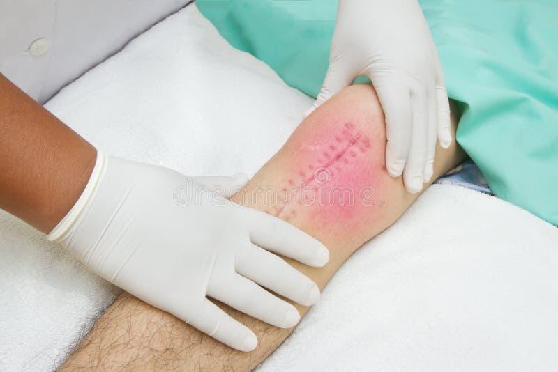 Руки обработки физиотерапевта соединение колена стоковое фото rf