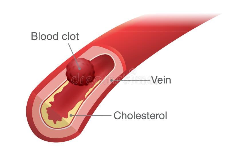 Сгусток крови происходит в вене иллюстрация штока