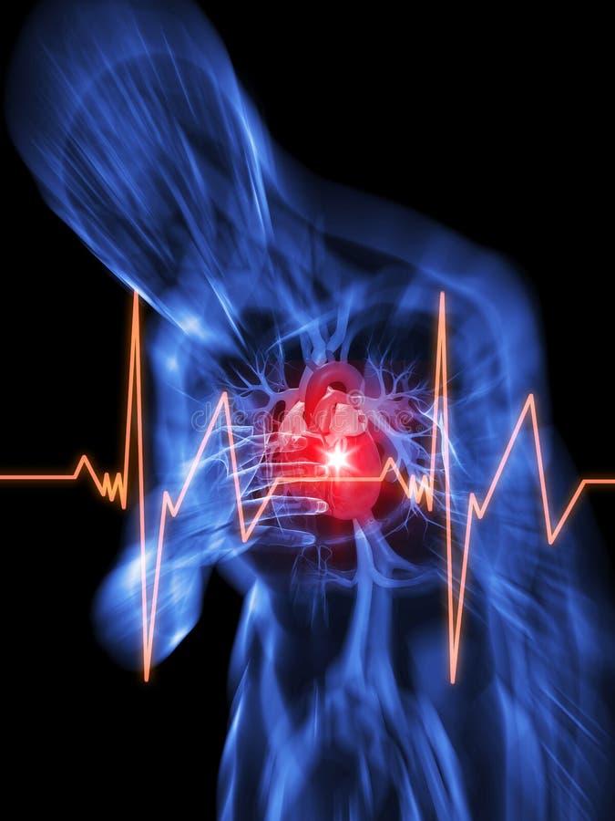 сердце нападения иллюстрация вектора