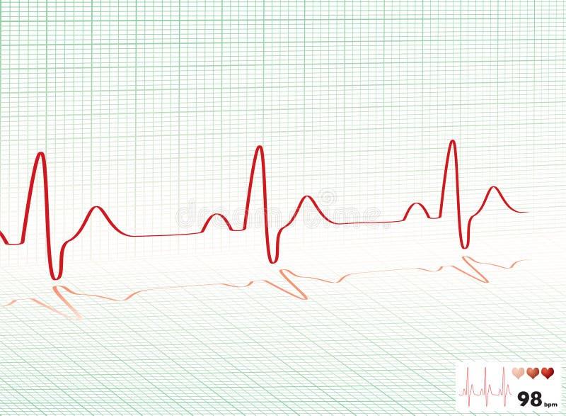 сердце решетки удара зеленое бесплатная иллюстрация