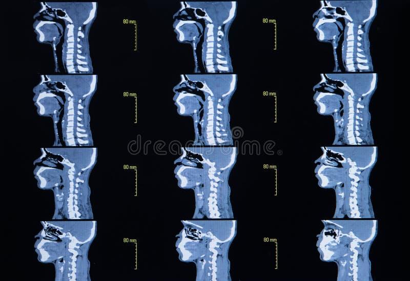 Серия изображений от компьютеризированной томографии шеи стоковое фото