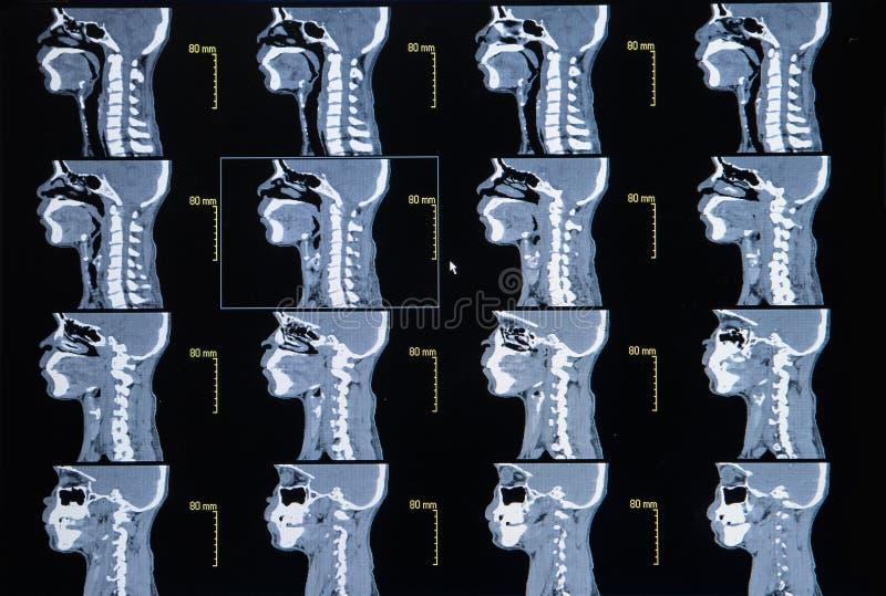 Серия изображений от компьютеризированной томографии шеи (cervica стоковые изображения
