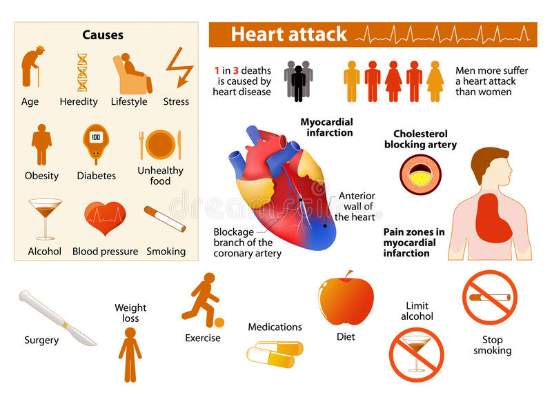 Сердечный приступ infographic иллюстрация вектора
