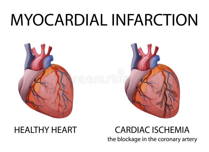 Сердце инфаркт миокардиальный бесплатная иллюстрация