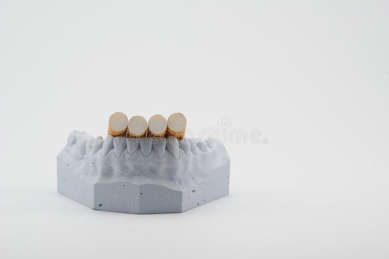 Сигареты на модели зубов стоковые изображения rf