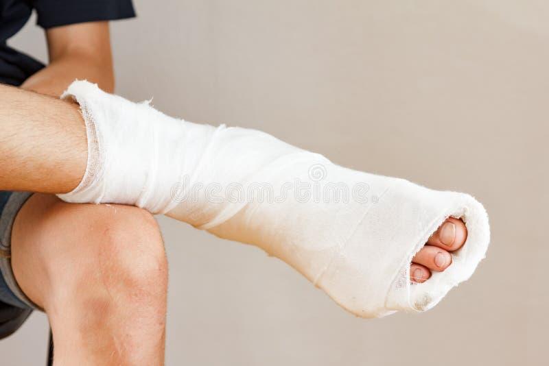 Сидя гипсолит травмы ноги человека, молодой стоковые изображения rf