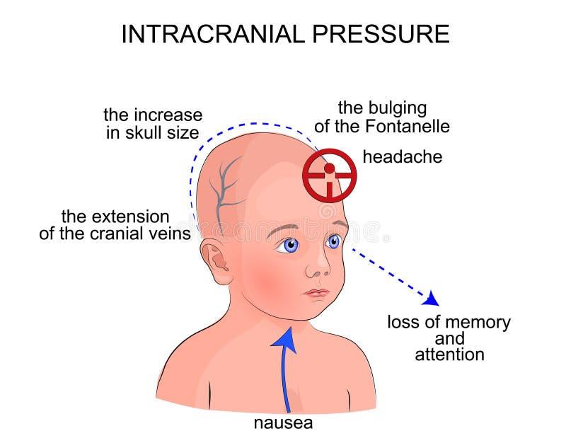 Симптомы внутричерепного давления в детях бесплатная иллюстрация