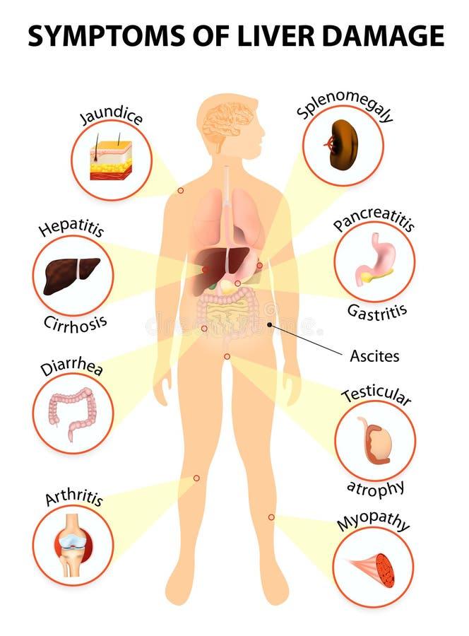 Симптомы заболеваних печеней иллюстрация вектора