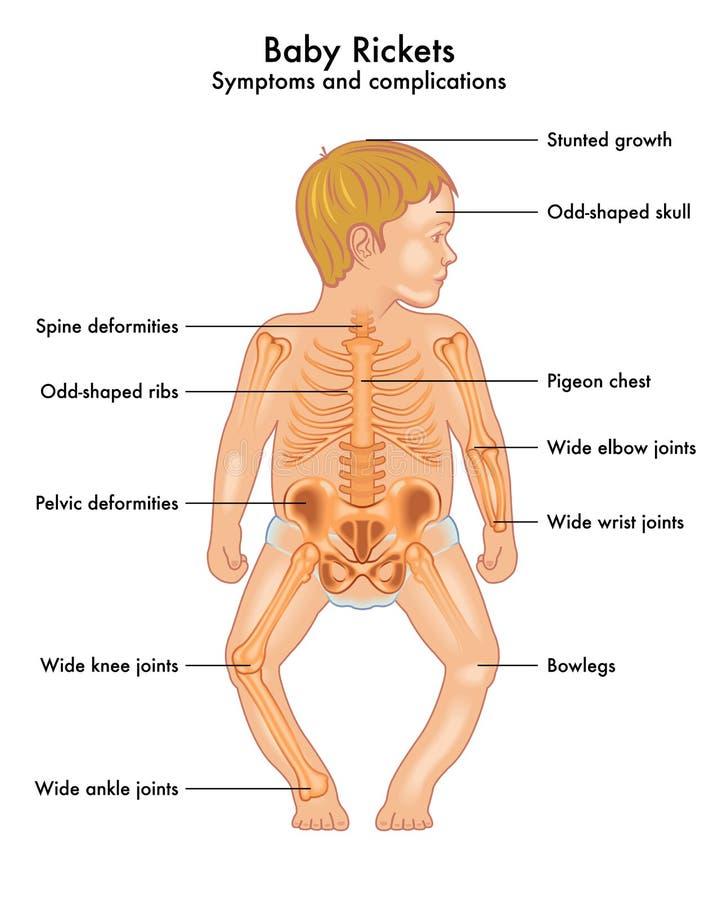 Симптомы rickets младенца иллюстрация штока