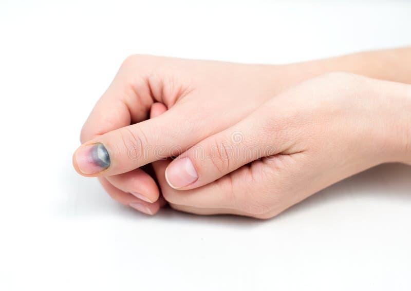 Синяк на ногте стоковая фотография rf