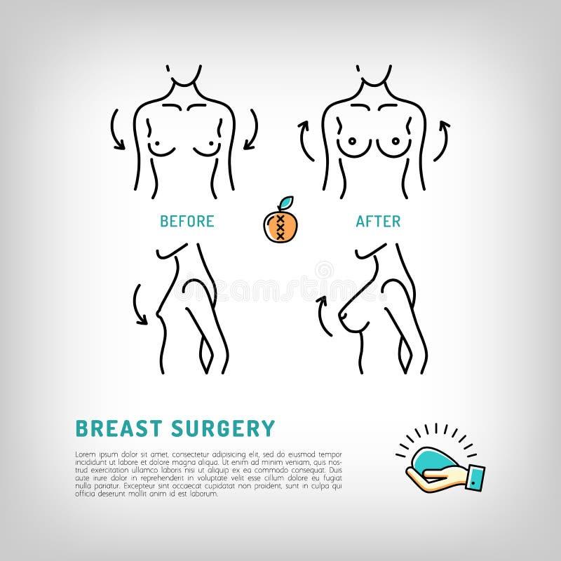 Силикон логотипов пластической хирургии груди увеличения имплантирует значки вектора иллюстрация штока