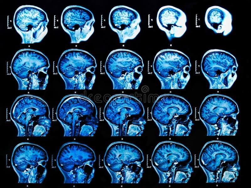 Сканирование мозга MRI стоковые изображения rf