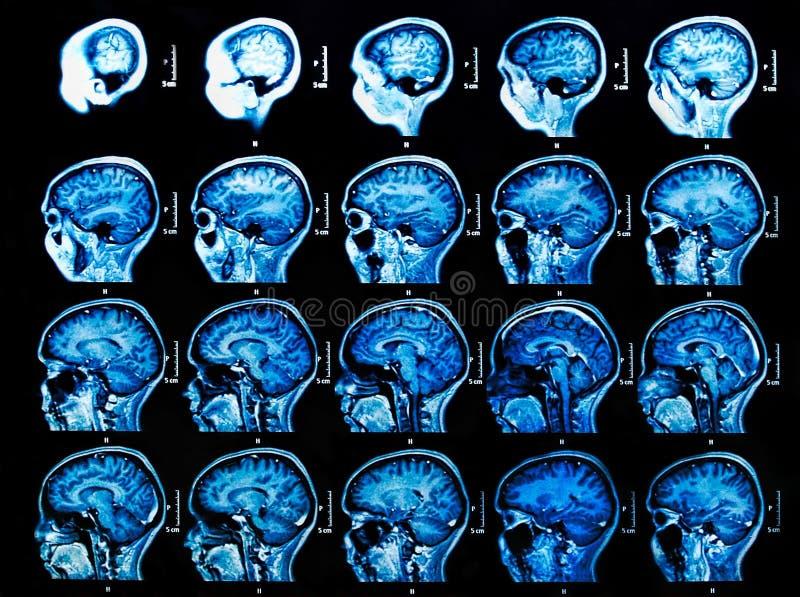 Сканирование мозга MRI стоковое изображение
