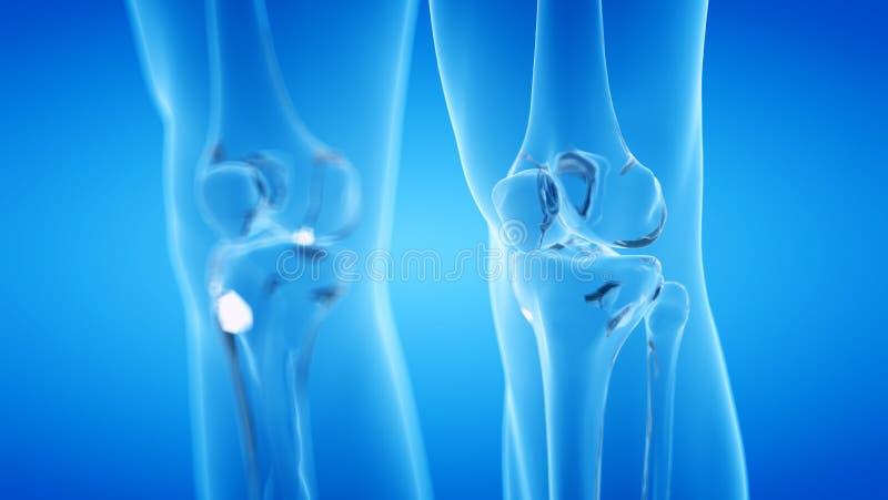 скелетное колено бесплатная иллюстрация