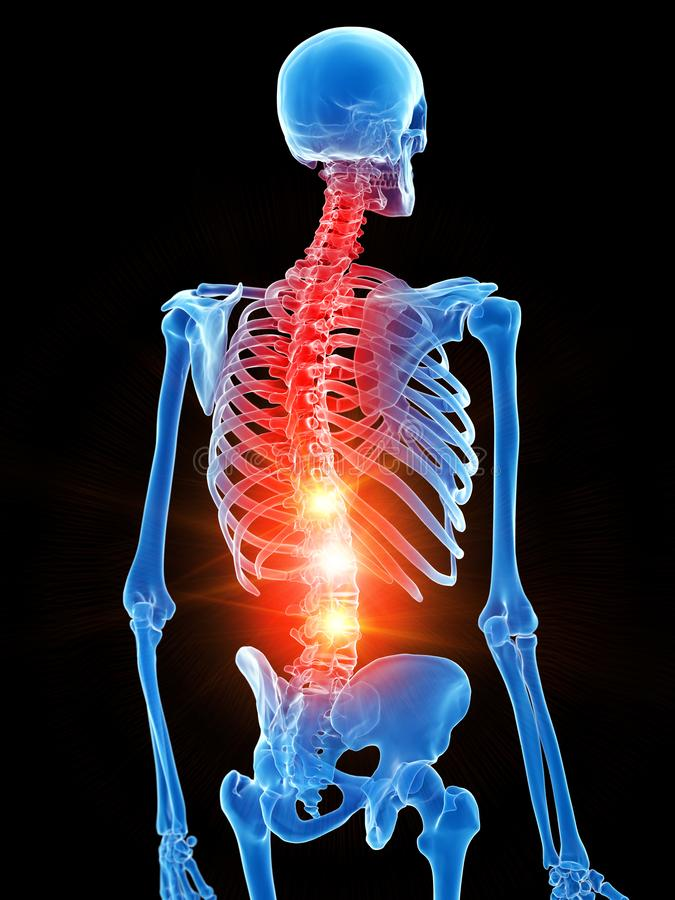 Скелетный торакс показывая боль бесплатная иллюстрация