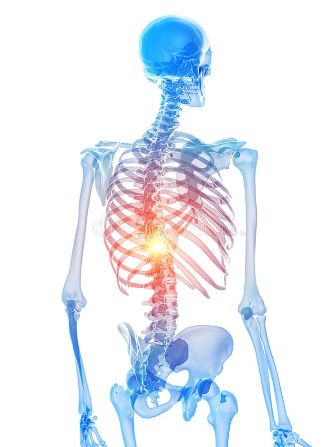 Скелетный торакс показывая боль иллюстрация вектора