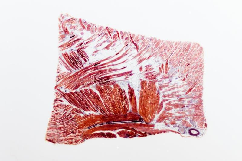 Скольжение скелетной мышцы исправленное стоковая фотография rf