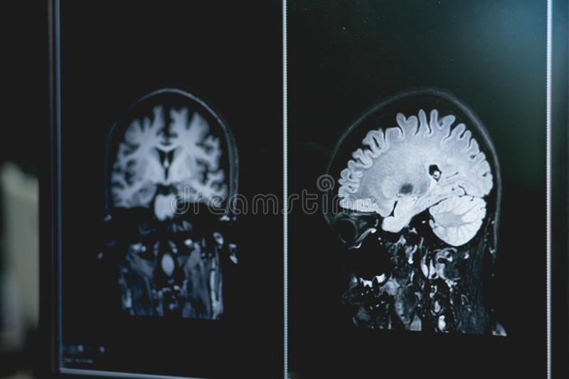 Слабоумие на фильме MRI слабоумие мозга стоковая фотография