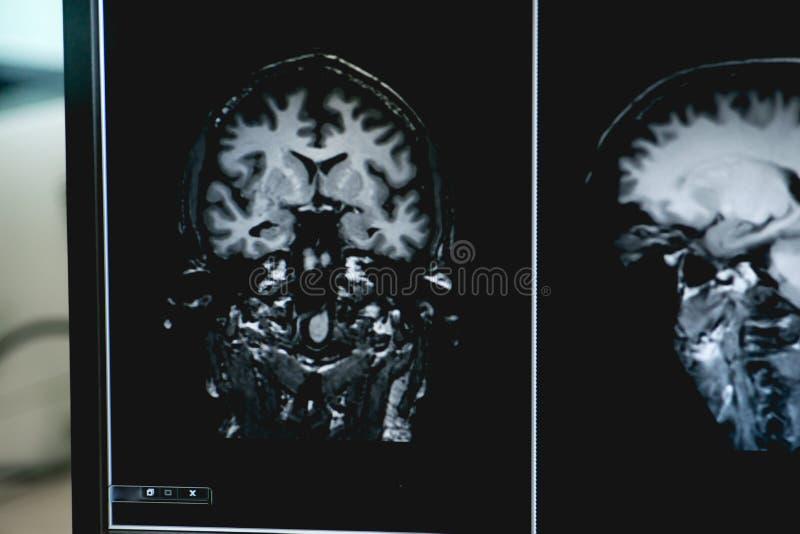 Слабоумие на фильме MRI слабоумие мозга стоковое фото rf