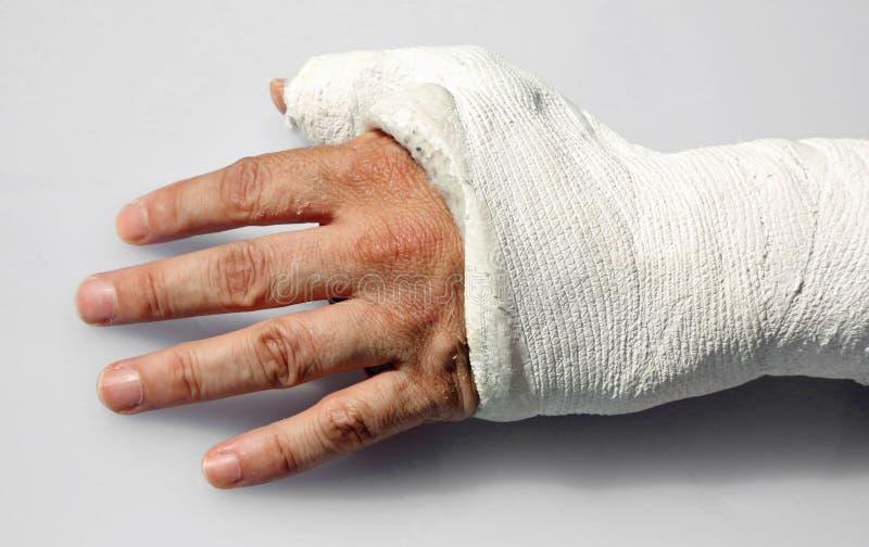 небольшую справку картинки про перелом руки берета крючком