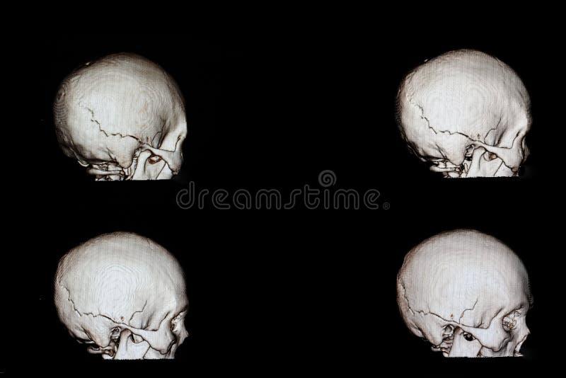 сломанный фильм черепа стоковые фотографии rf