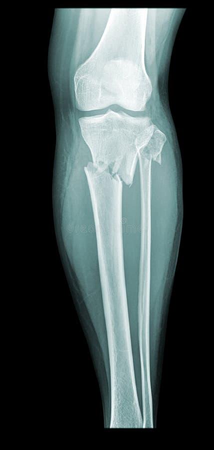 сломленная нога иллюстрация вектора