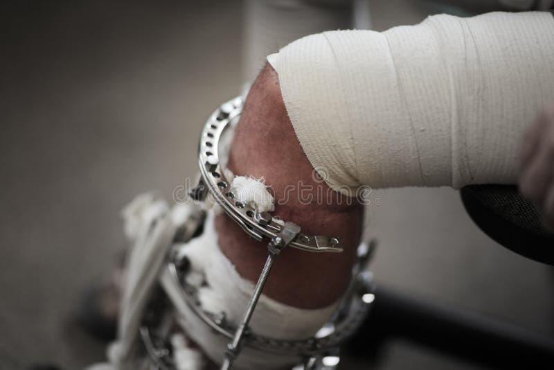 сломленная нога стоковое фото rf